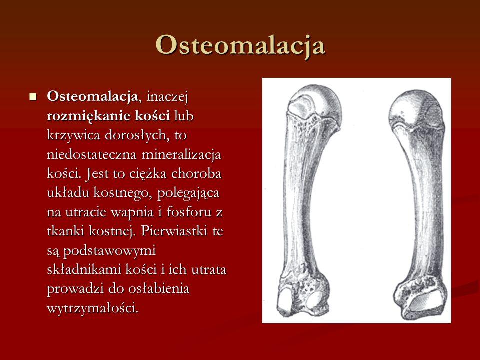 Osteomalacja
