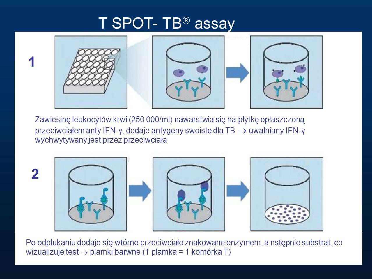 T SPOT- TB assay 1.