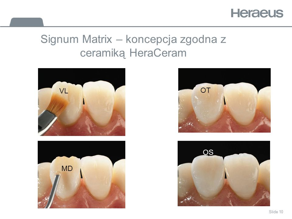 Signum Matrix – koncepcja zgodna z ceramiką HeraCeram