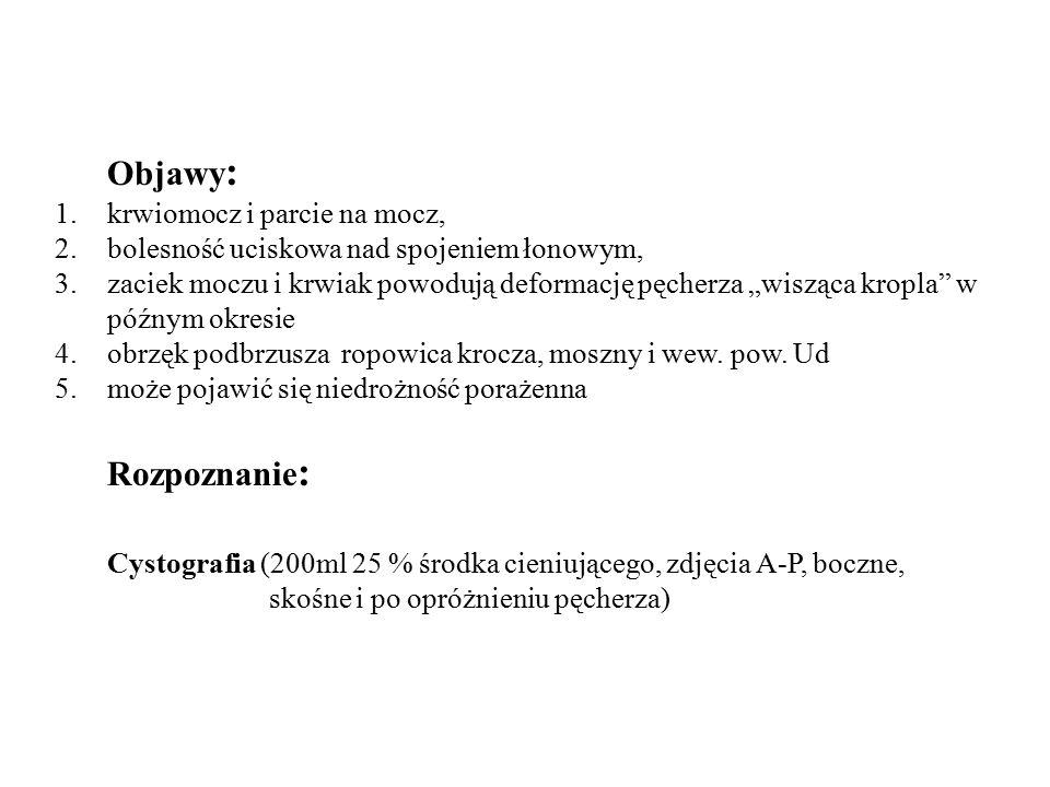 Objawy: Rozpoznanie: krwiomocz i parcie na mocz,