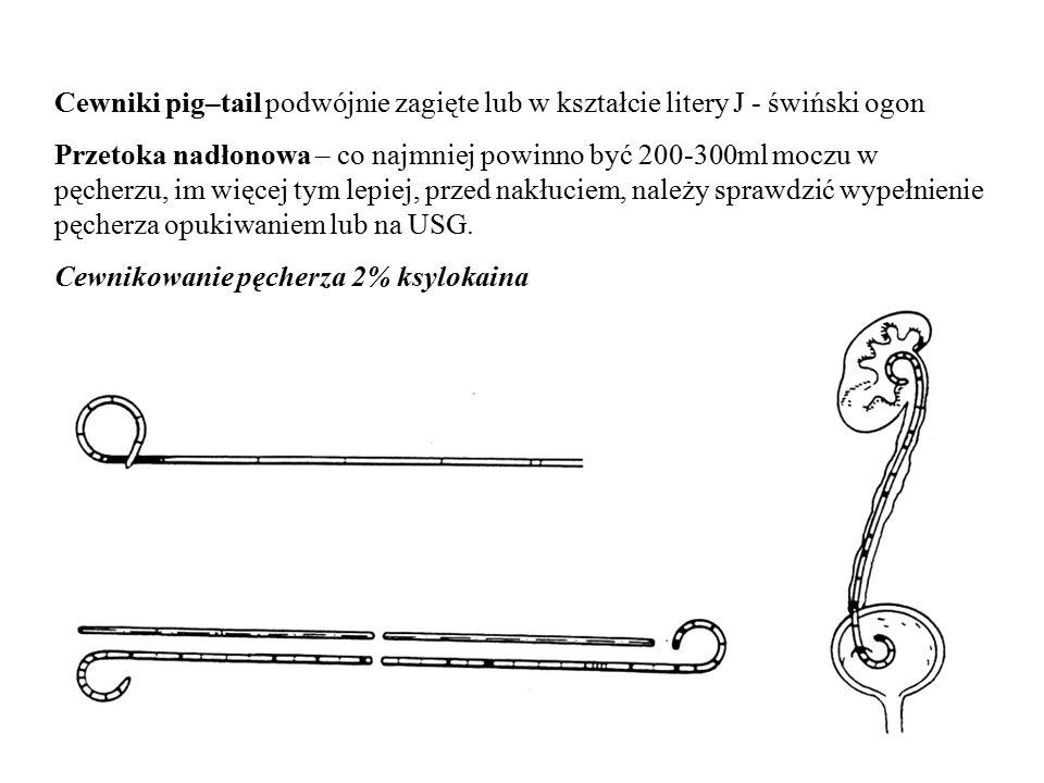 Cewniki pig–tail podwójnie zagięte lub w kształcie litery J - świński ogon