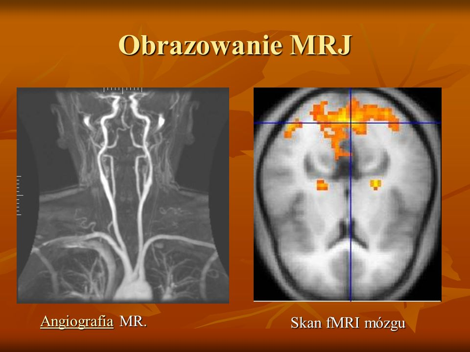 Obrazowanie MRJ Angiografia MR. Skan fMRI mózgu