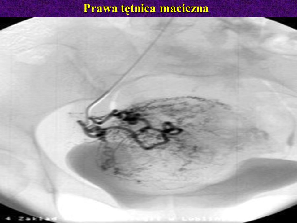 Prawa tętnica maciczna