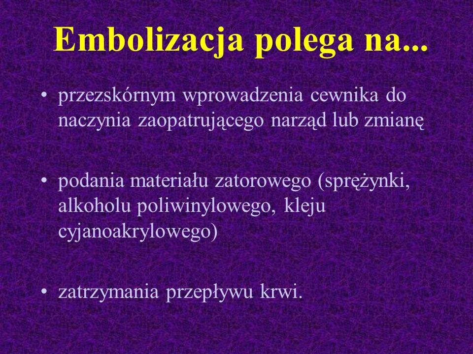Embolizacja polega na... przezskórnym wprowadzenia cewnika do naczynia zaopatrującego narząd lub zmianę.