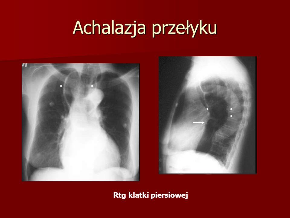 Achalazja przełyku Rtg klatki piersiowej