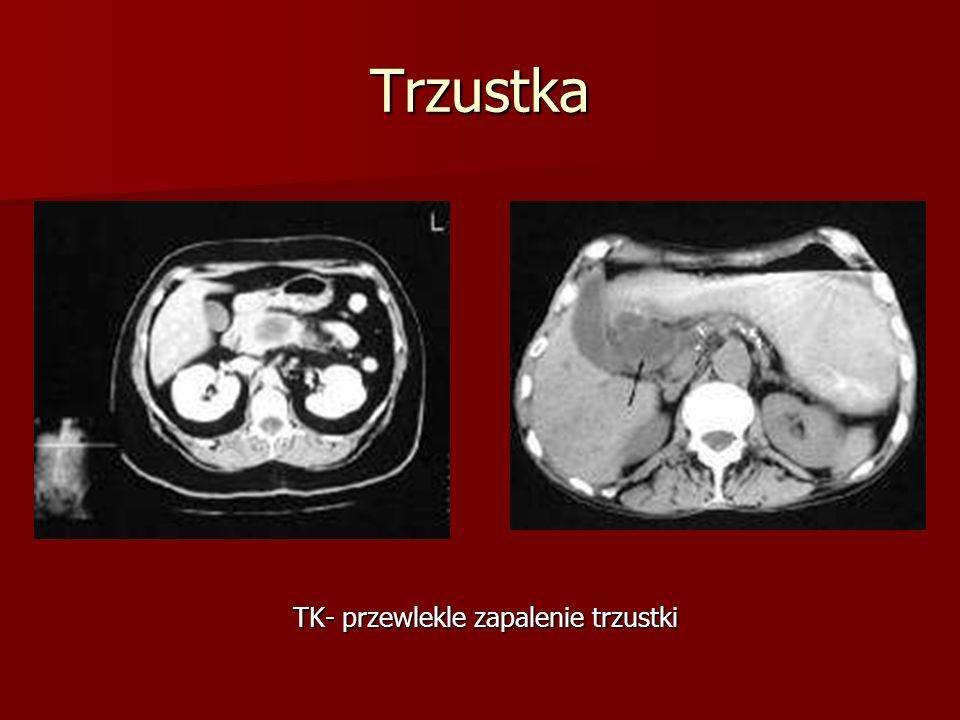 Trzustka TK- przewlekle zapalenie trzustki