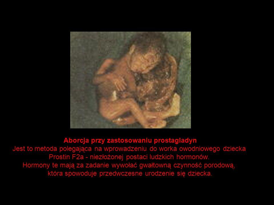 Aborcja przy zastosowaniu prostagladyn