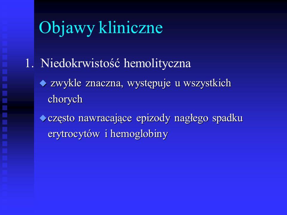 Objawy kliniczne 1. Niedokrwistość hemolityczna