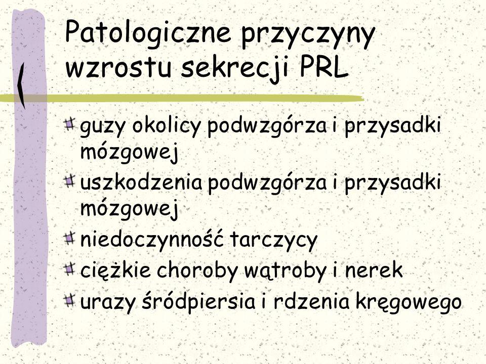 Patologiczne przyczyny wzrostu sekrecji PRL
