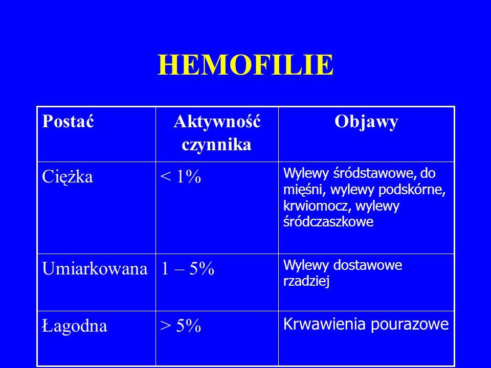 HEMOFILIE > 5% Łagodna 1 – 5% Umiarkowana < 1% Ciężka Objawy