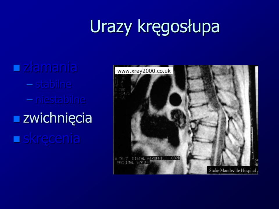 Urazy kręgosłupa złamania stabilne niestabilne zwichnięcia skręcenia