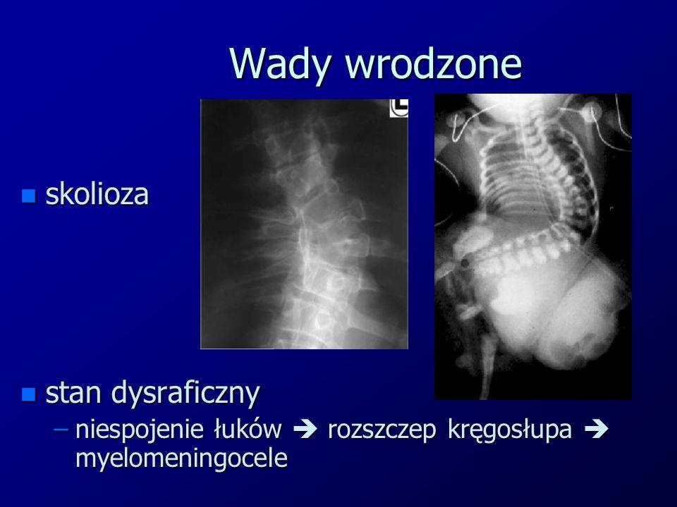 Wady wrodzone skolioza stan dysraficzny
