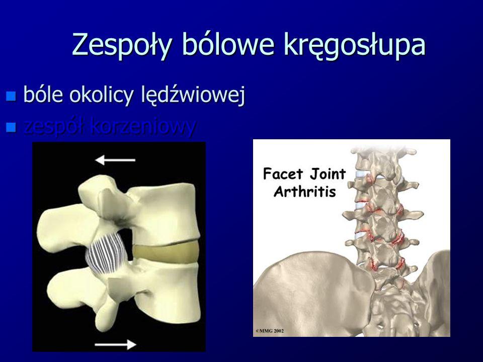 Zespoły bólowe kręgosłupa