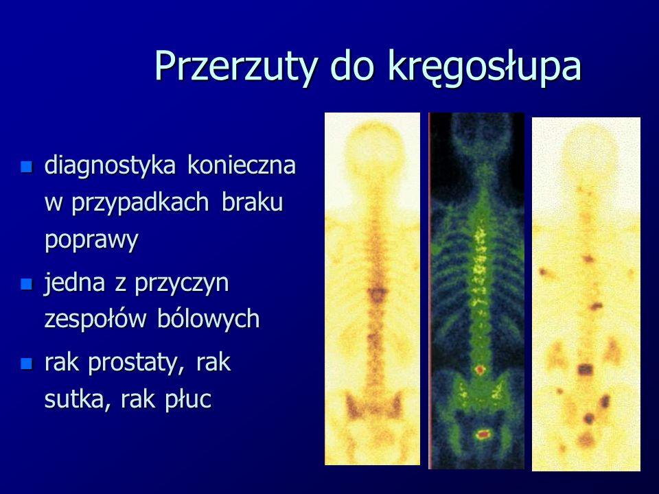 Przerzuty do kręgosłupa