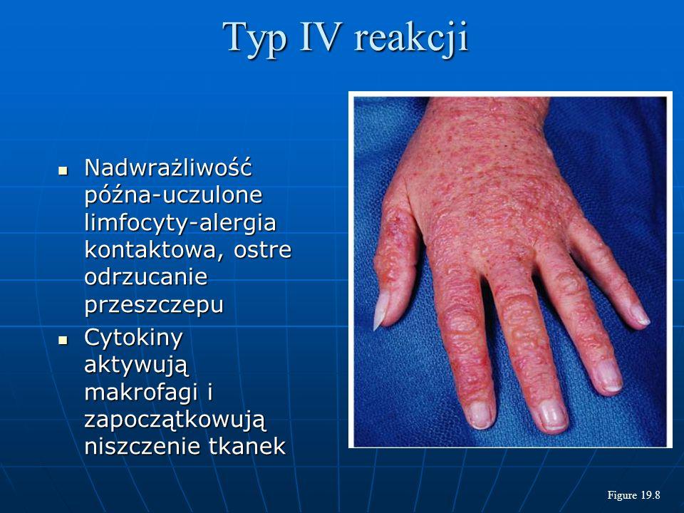 Typ IV reakcji Nadwrażliwość późna-uczulone limfocyty-alergia kontaktowa, ostre odrzucanie przeszczepu.
