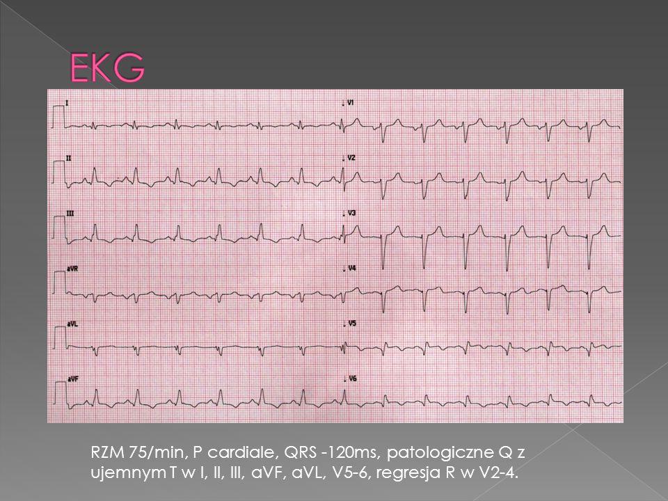 EKG RZM 75/min, P cardiale, QRS -120ms, patologiczne Q z ujemnym T w I, II, III, aVF, aVL, V5-6, regresja R w V2-4.