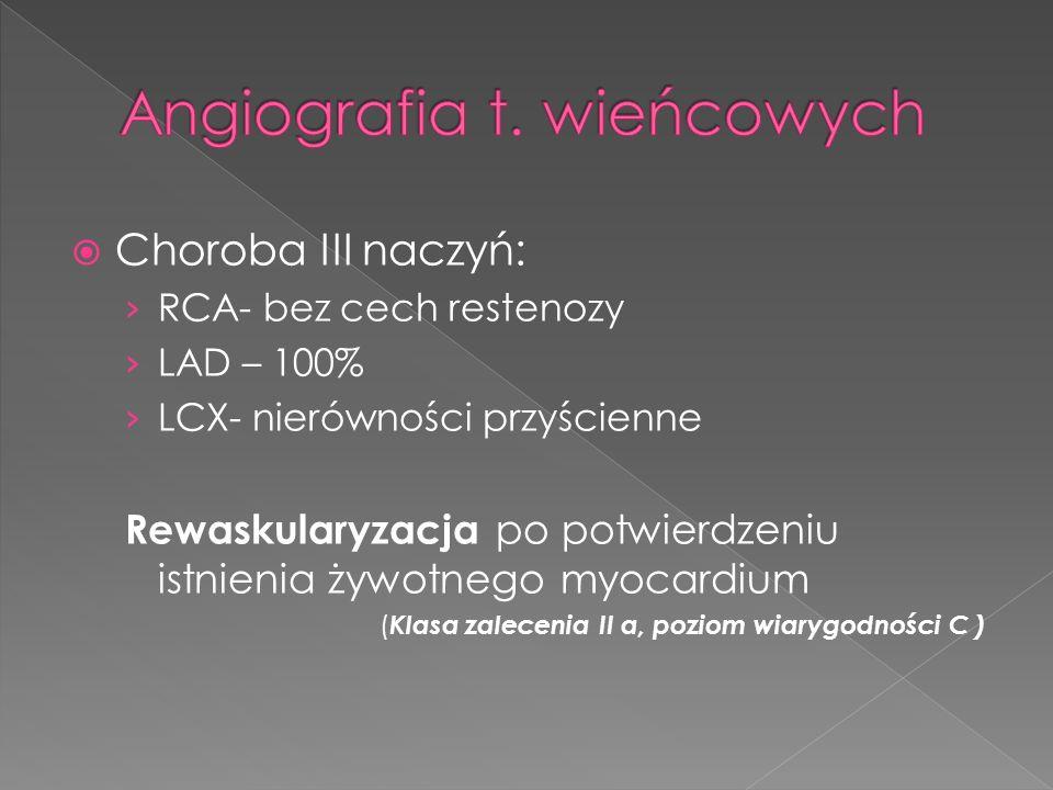 Angiografia t. wieńcowych