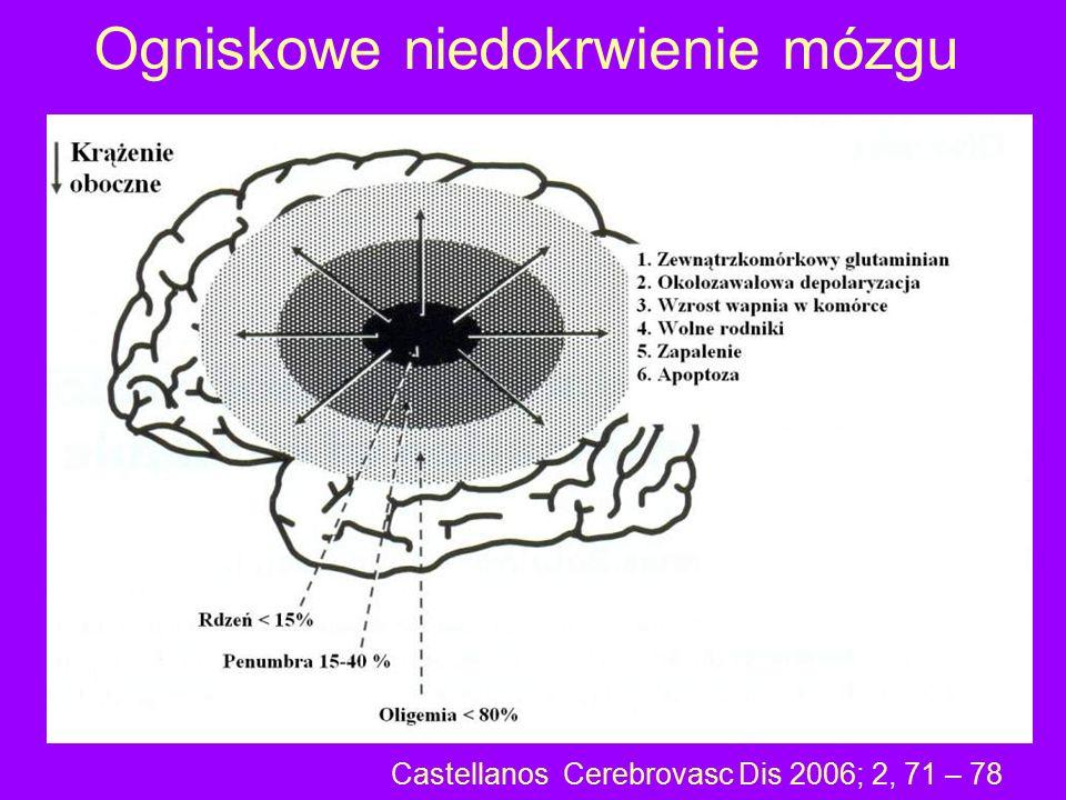 Ogniskowe niedokrwienie mózgu