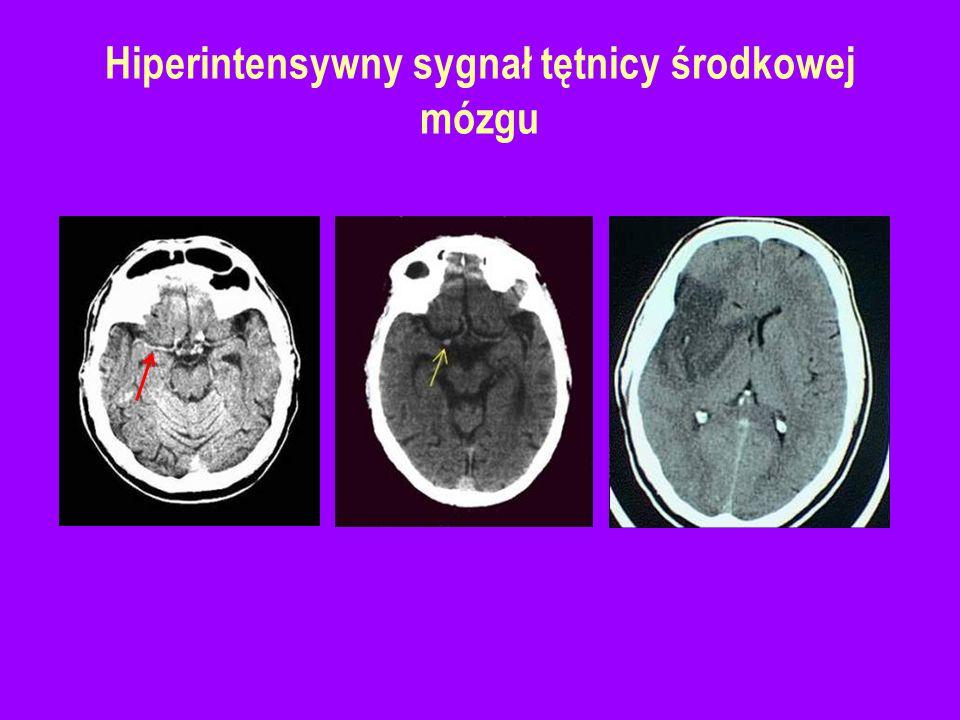 Hiperintensywny sygnał tętnicy środkowej mózgu