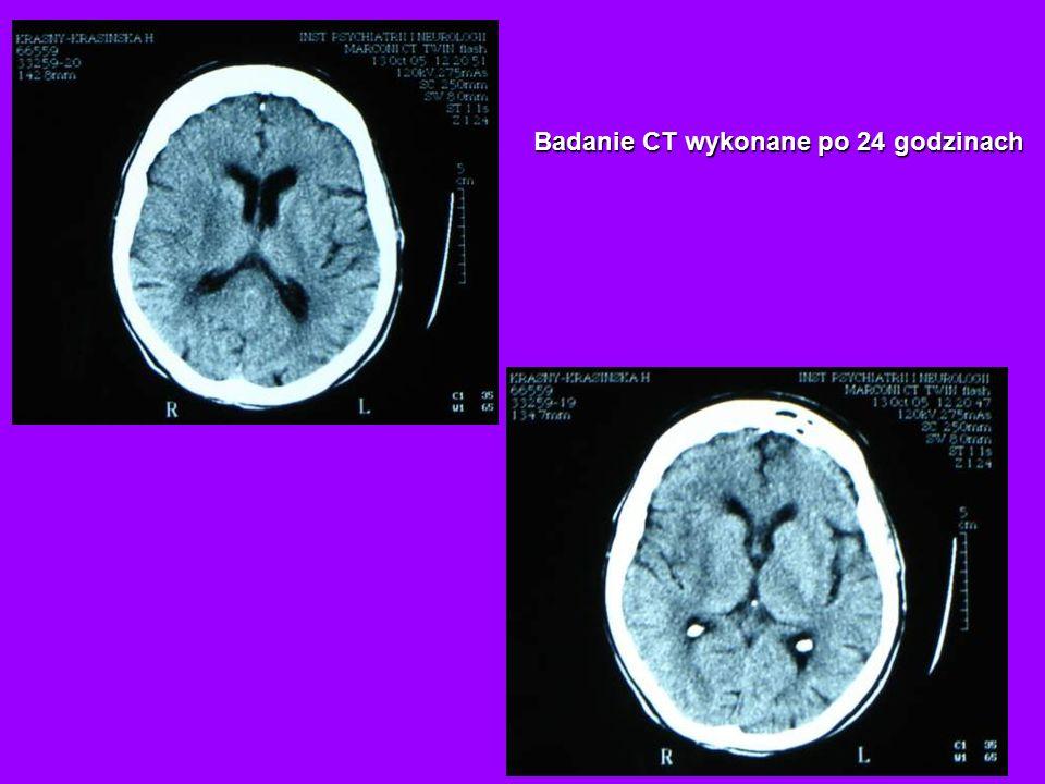 Badanie CT wykonane po 24 godzinach