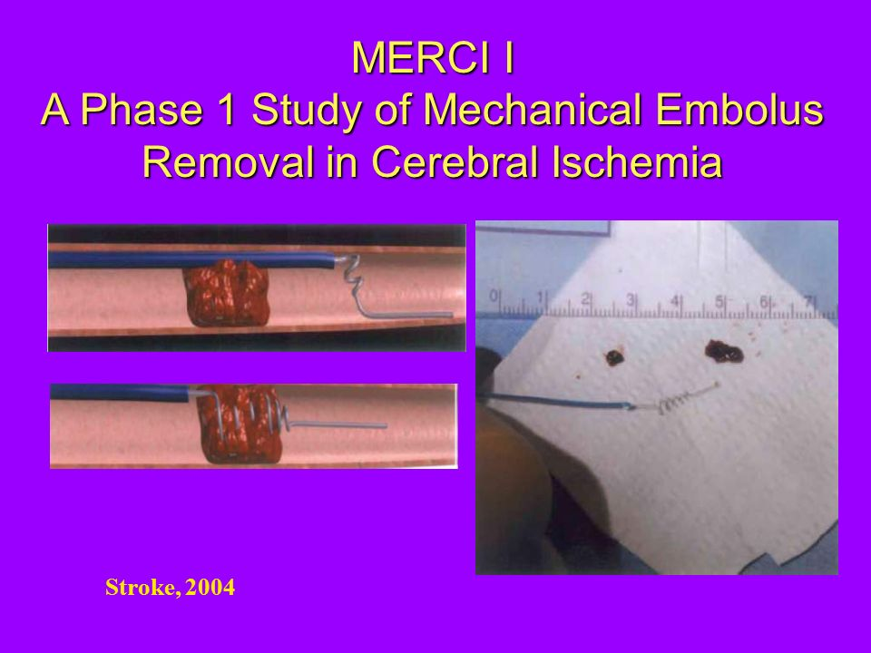 MERCI I A Phase 1 Study of Mechanical Embolus Removal in Cerebral Ischemia