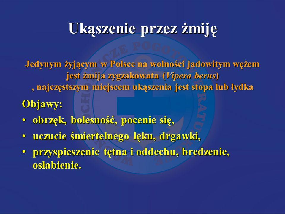 Ukąszenie przez żmiję Jedynym żyjącym w Polsce na wolności jadowitym wężem jest żmija zygzakowata (Vipera berus) , najczęstszym miejscem ukąszenia jest stopa lub łydka