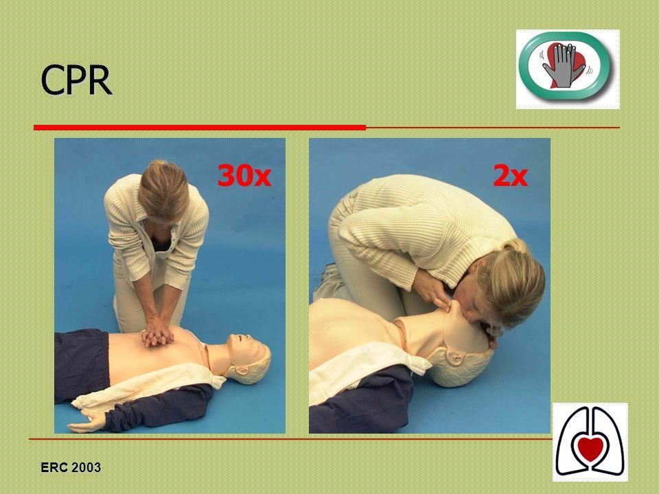 CPR 30x 2x ERC 2003