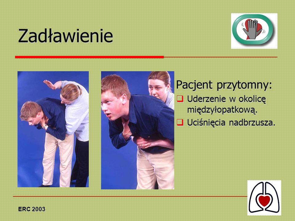 Zadławienie Pacjent przytomny: Uderzenie w okolicę międzyłopatkową.