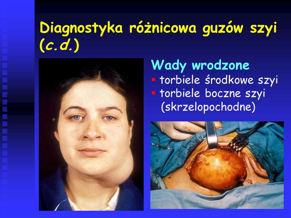 Diagnostyka różnicowa guzów szyi (c.d.)