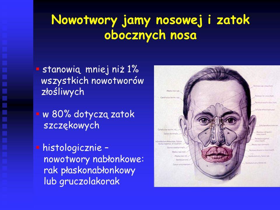 Nowotwory jamy nosowej i zatok obocznych nosa