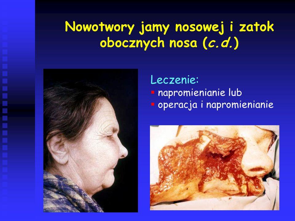 Nowotwory jamy nosowej i zatok obocznych nosa (c.d.)
