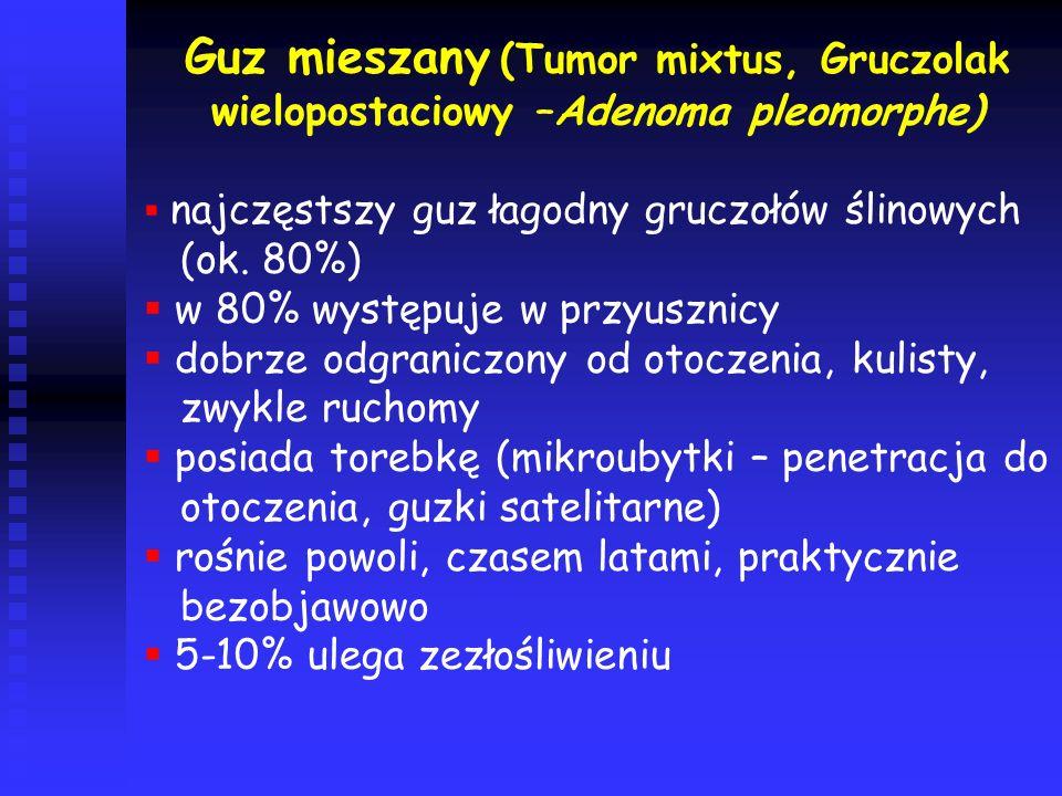 Guz mieszany (Tumor mixtus, Gruczolak wielopostaciowy –Adenoma pleomorphe)