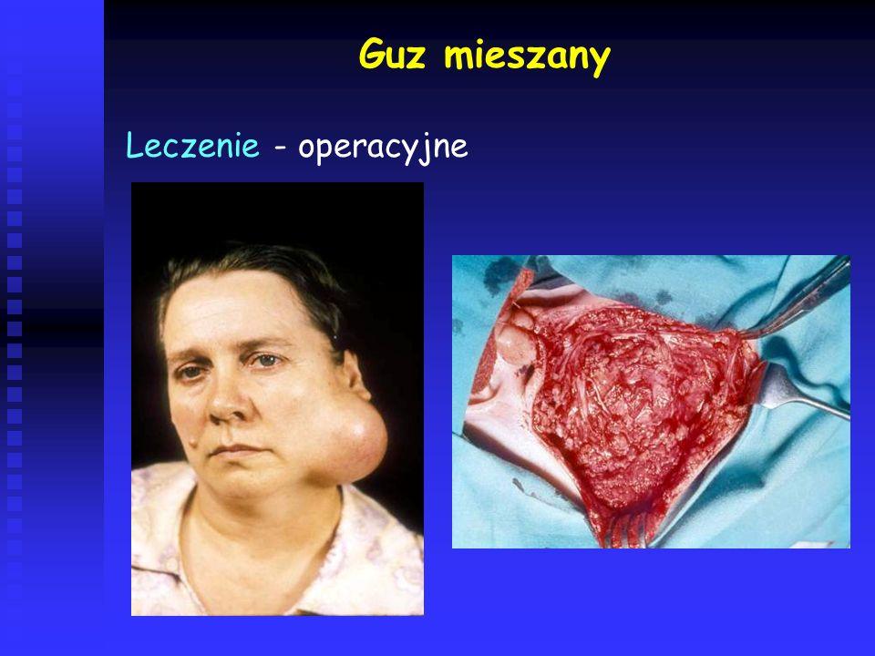 Guz mieszany Leczenie - operacyjne