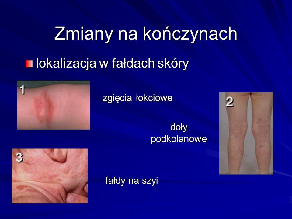 Zmiany na kończynach lokalizacja w fałdach skóry zgięcia łokciowe