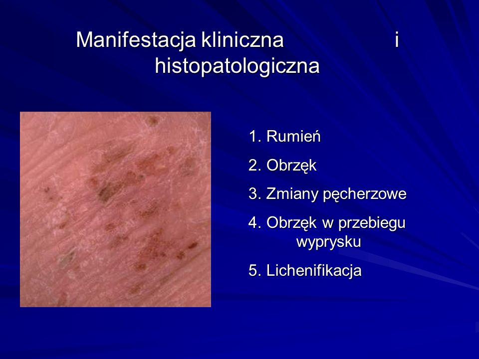 Manifestacja kliniczna i histopatologiczna