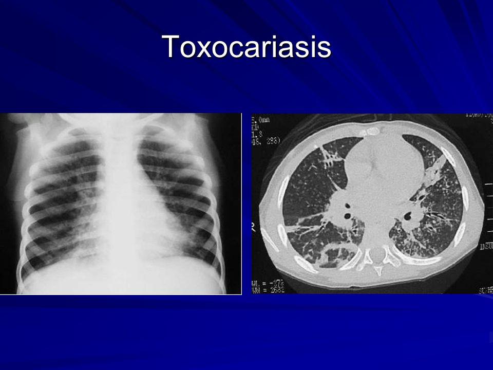 Toxocariasis 3 letnia dziewczynka z infestacją Toxocara canis – Eoz > 5000/mm3, podwyższone IgE.