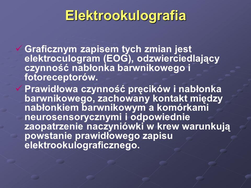 Elektrookulografia Graficznym zapisem tych zmian jest elektroculogram (EOG), odzwierciedlający czynność nabłonka barwnikowego i fotoreceptorów.