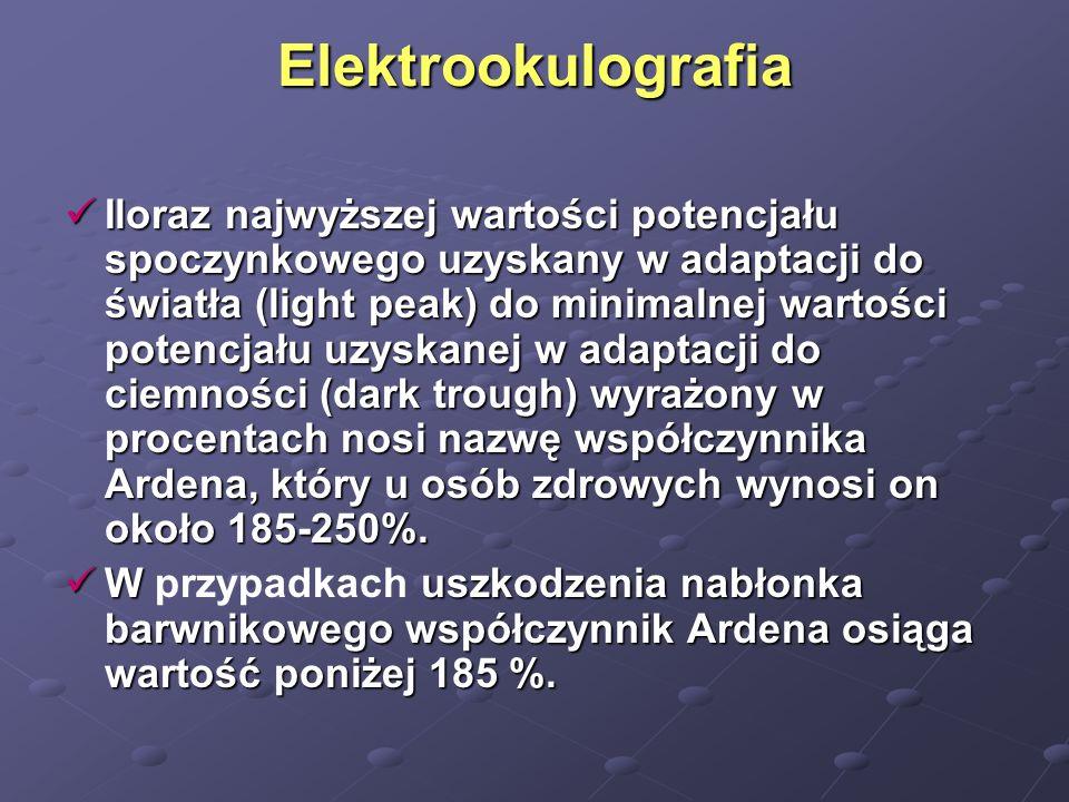 Elektrookulografia