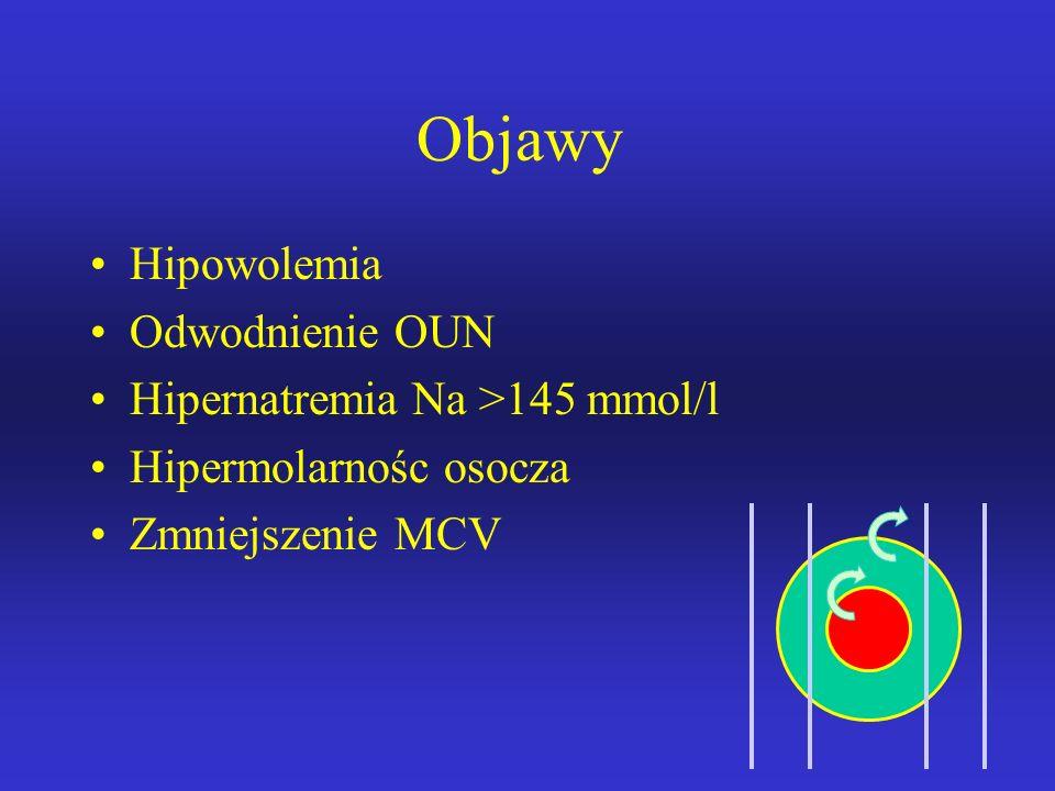 Objawy Hipowolemia Odwodnienie OUN Hipernatremia Na >145 mmol/l