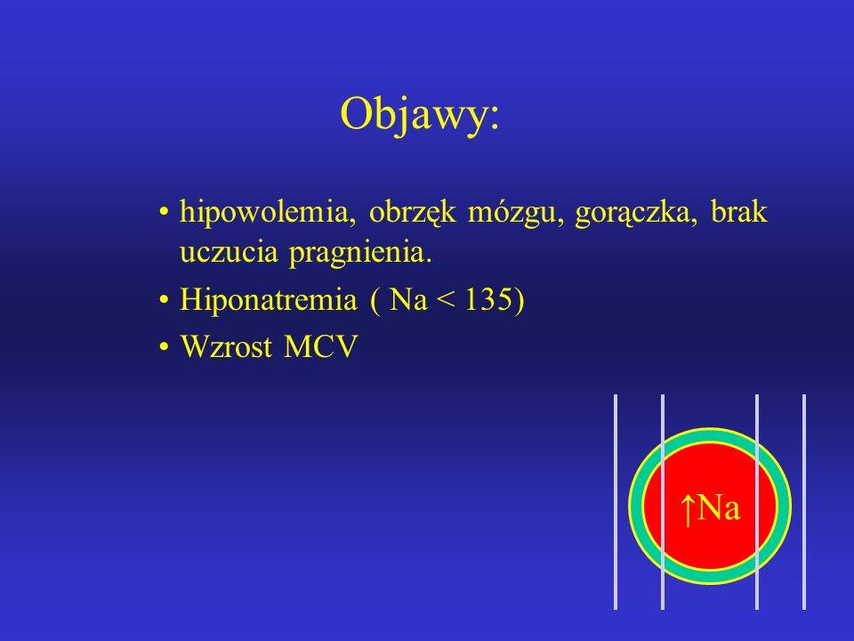 Objawy: hipowolemia, obrzęk mózgu, gorączka, brak uczucia pragnienia. Hiponatremia ( Na < 135) Wzrost MCV.