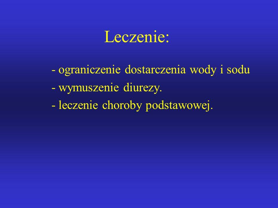 Leczenie: ograniczenie dostarczenia wody i sodu wymuszenie diurezy.
