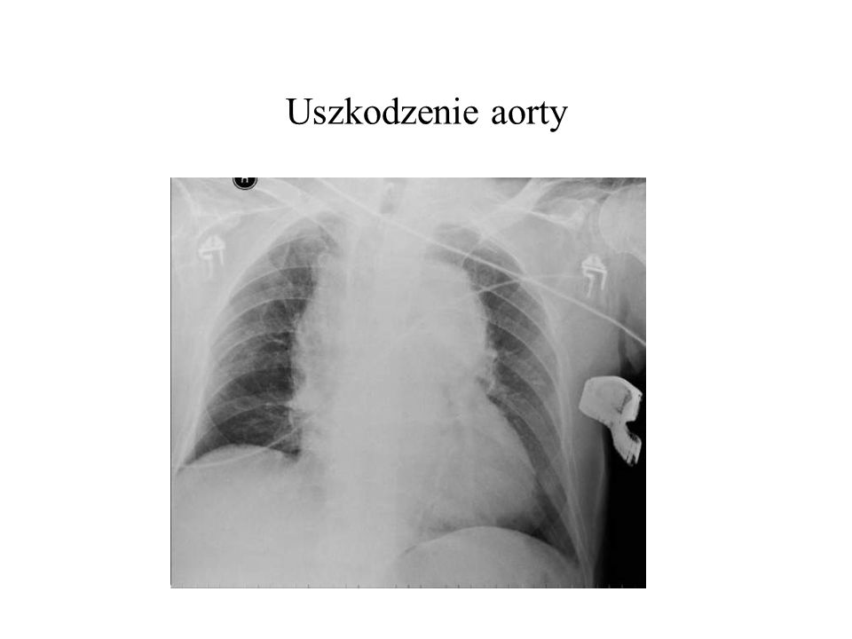 Uszkodzenie aorty
