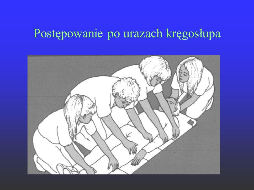Postępowanie po urazach kręgosłupa