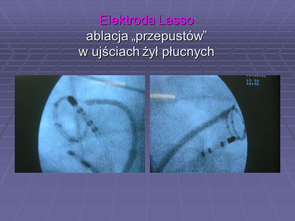 """Elektroda Lasso ablacja """"przepustów w ujściach żył płucnych"""