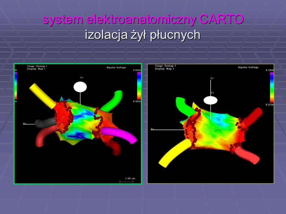 system elektroanatomiczny CARTO izolacja żył płucnych