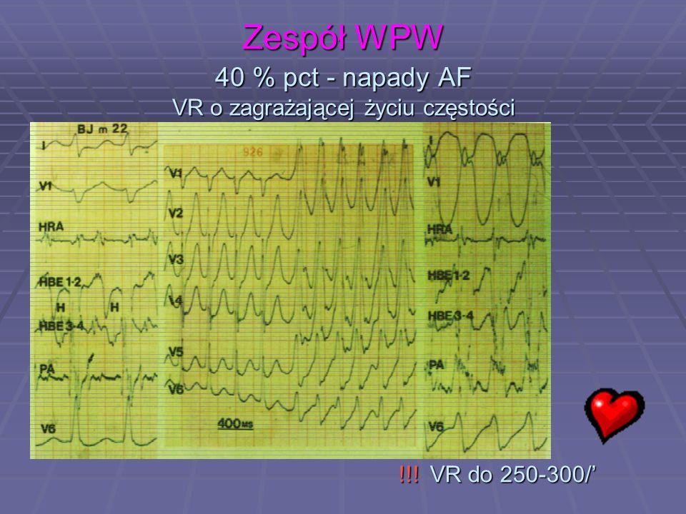 Zespół WPW 40 % pct - napady AF VR o zagrażającej życiu częstości