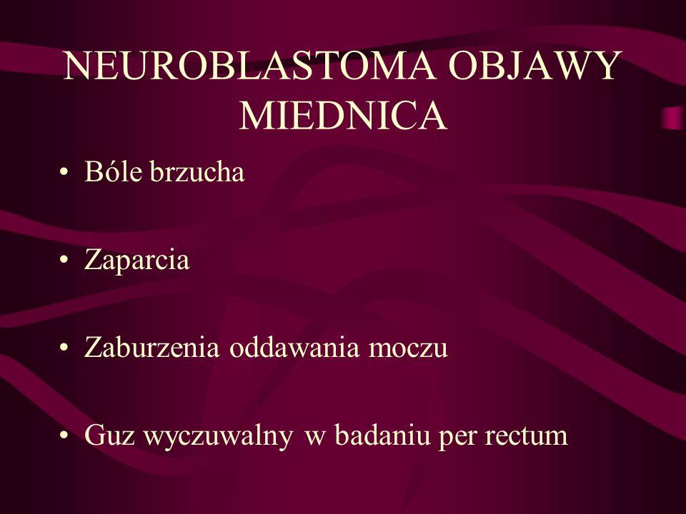 NEUROBLASTOMA OBJAWY MIEDNICA