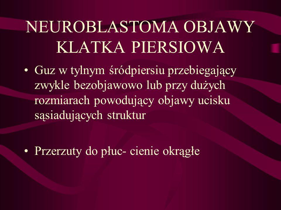 NEUROBLASTOMA OBJAWY KLATKA PIERSIOWA