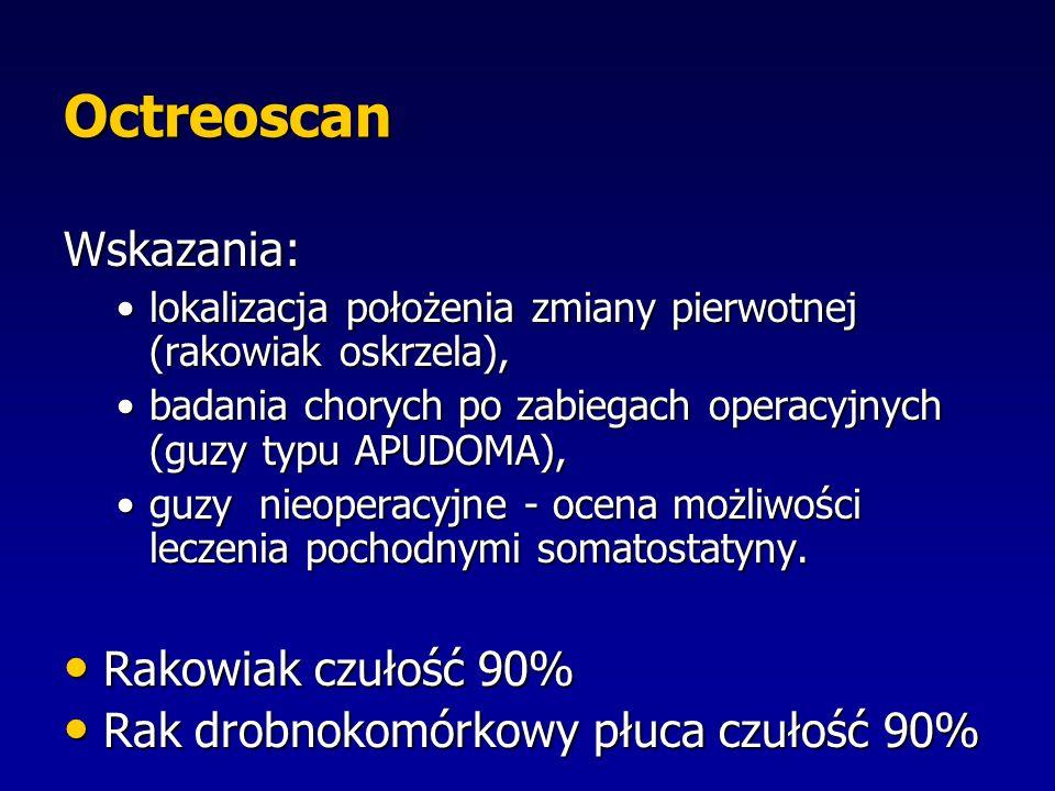 Octreoscan Wskazania: Rakowiak czułość 90%