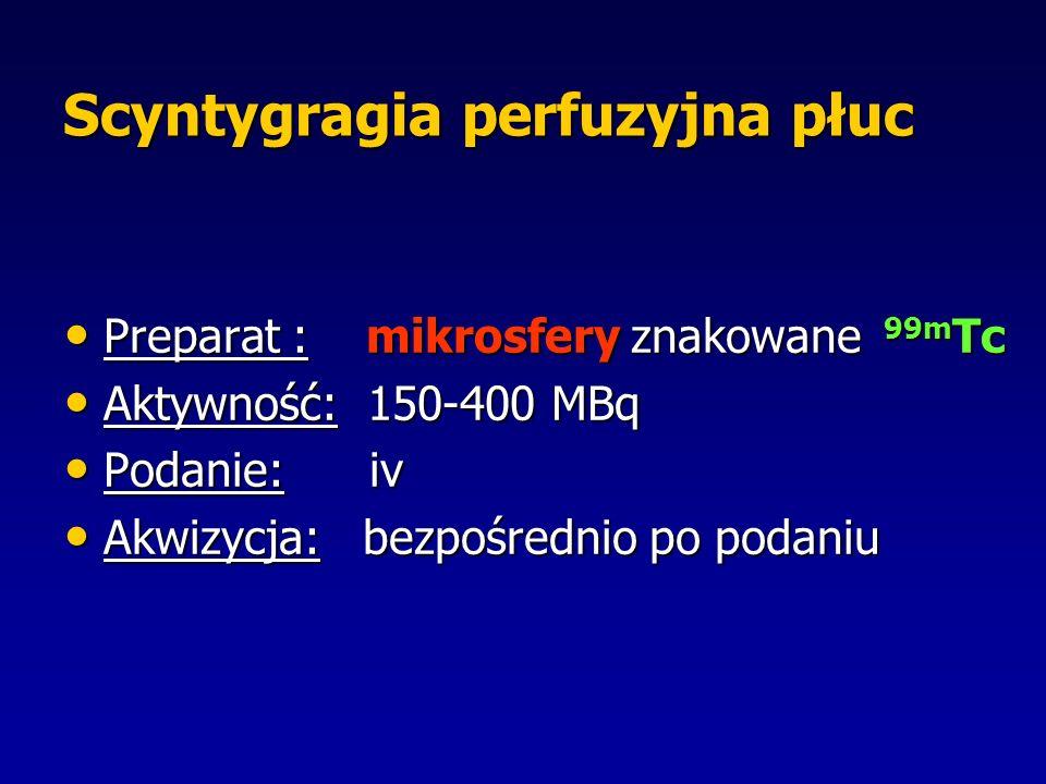 Scyntygragia perfuzyjna płuc